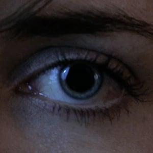 Aetuts retina dilating iris
