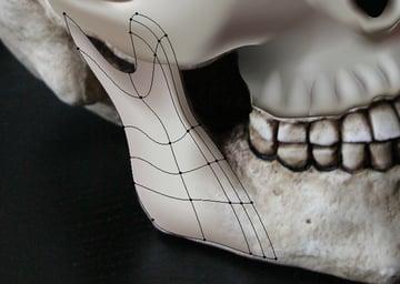 skull_8-3_lower_jaw