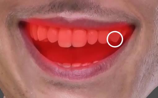 Mask teeth