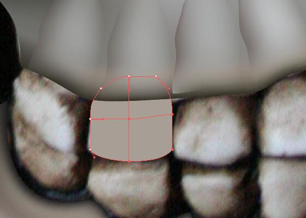 skull_9-1_tooth