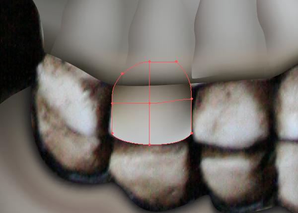 skull_9-2_tooth